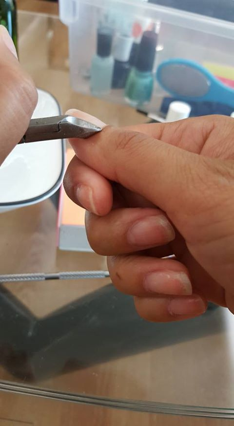 cut cuticles, Easy DIY
